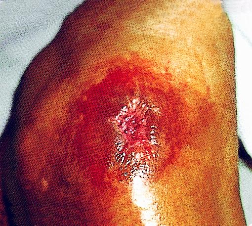 pressure ulcer pressure injury stage